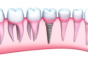 Dental Tooth Implants